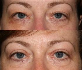 Liverpool Eye Clinic - Cosmetic Eyelid Surgery